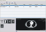DICOM Viewer Worklist