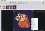 DICOM Viewer Options Menu